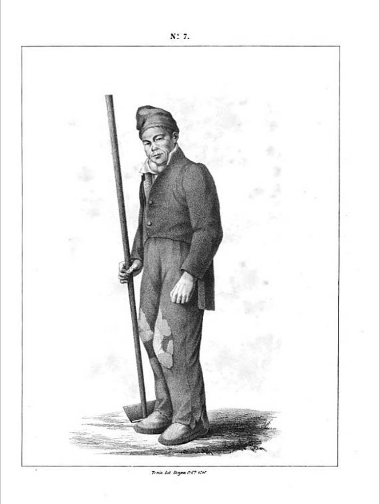 """Gravure représentant un """"crétin"""", tirée du Rapport de la commission Charles-Albert, 1848, p. 243."""