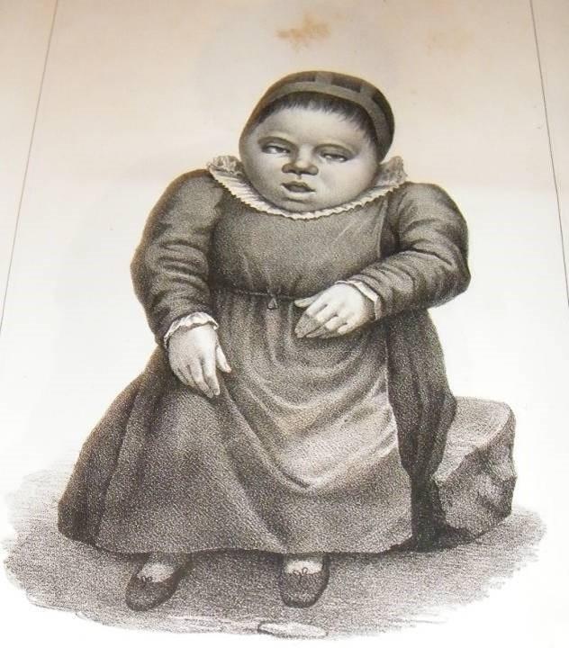 Gravure représentant une « crétine » tirée du rapport de la Commission du roi Charles-Albert, 1845-1848, p. 231.