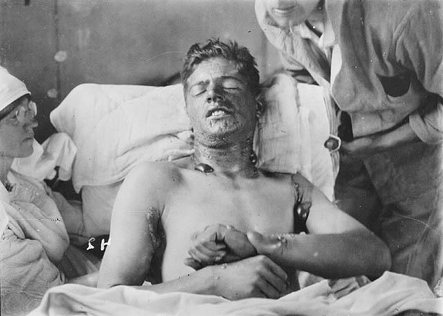 Soldat canadien souffrant de brûlures et de cloques causées par l'exposition au gaz moutarde, vers 1917-1918 (Wikipedia, art. Gaz moutarde)
